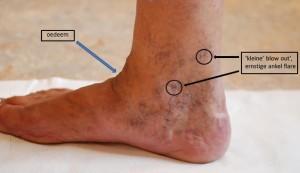Oedeem atossa huid en oedeemtherapie for Behandeling oedeem