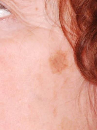 onschuldig dating site donkere huid