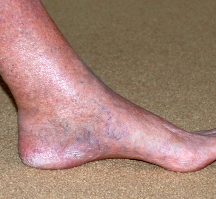 kleine spataders benen