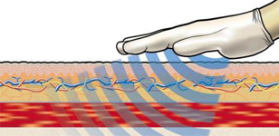 Doormiddel van elektrostatische trilling zorgt de Deep Oscillation voor trillingen op celniveau, waardoor stilstaand weefsel in beweging gebracht kan worden. Deze trilling heeft juist effect van binnenuit, hierdoor kan met weinig druk gewerkt worden en wordt de Deep Oscillation behandeling als zeer prettig ervaren.