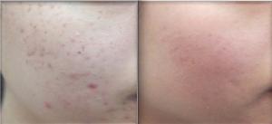 Sint Michielsgestel, Den Bosch, Tilburg, acne, huidverbetering, littekenbehandeling