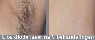 Sint Michielsgestel, Den Bosch, Tilburg, De Elos Diode laser maakt gebruik van 2 energiebronnen en is daarom effectiever dan traditionele lasers zoals de Light Sheer Diode laser en ND YAG laser.