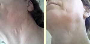 Tilburg, Sint Michielsgestel, Den Bosch, Ook oude littekens kunnen goed met microneedling behandeld worden.