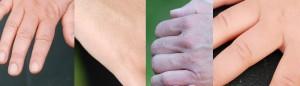 huidtherapeut