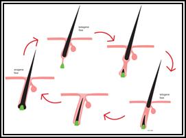 laser ontharen, ongewenste haargroei
