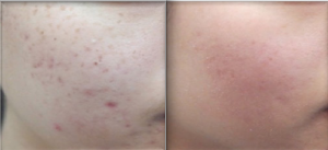 acne, huidverbetering, littekenbehandeling