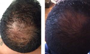 Haarverlies tegen gaan door microneedling.