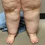 Lymflipoedeem, een aandoening aan de vetcellen, begint vaak in de puberteit. Klachten van pijn, blauwe plekken, vermoeidheid.