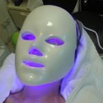 Tilburg, Sint Michielsgestel, Den Bosch,, Blauw licht 415 nm dood de propion bacterie, veroorzaker van acne.