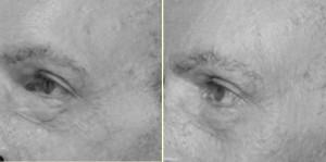 Den Bosch, Tilburg, Sint Michielsgestel, Littekenbehandeling na huidtransplantatie, microneedling heeft sterke verbetering gegeven.