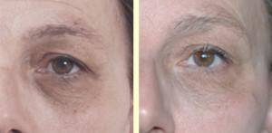 huidverbetering door microneedling, het ooglid wordt steviger waardoor de kringen en wallen minder worden.