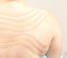 oedeem behandeling Tilburg Den Bosch met lymfetaping