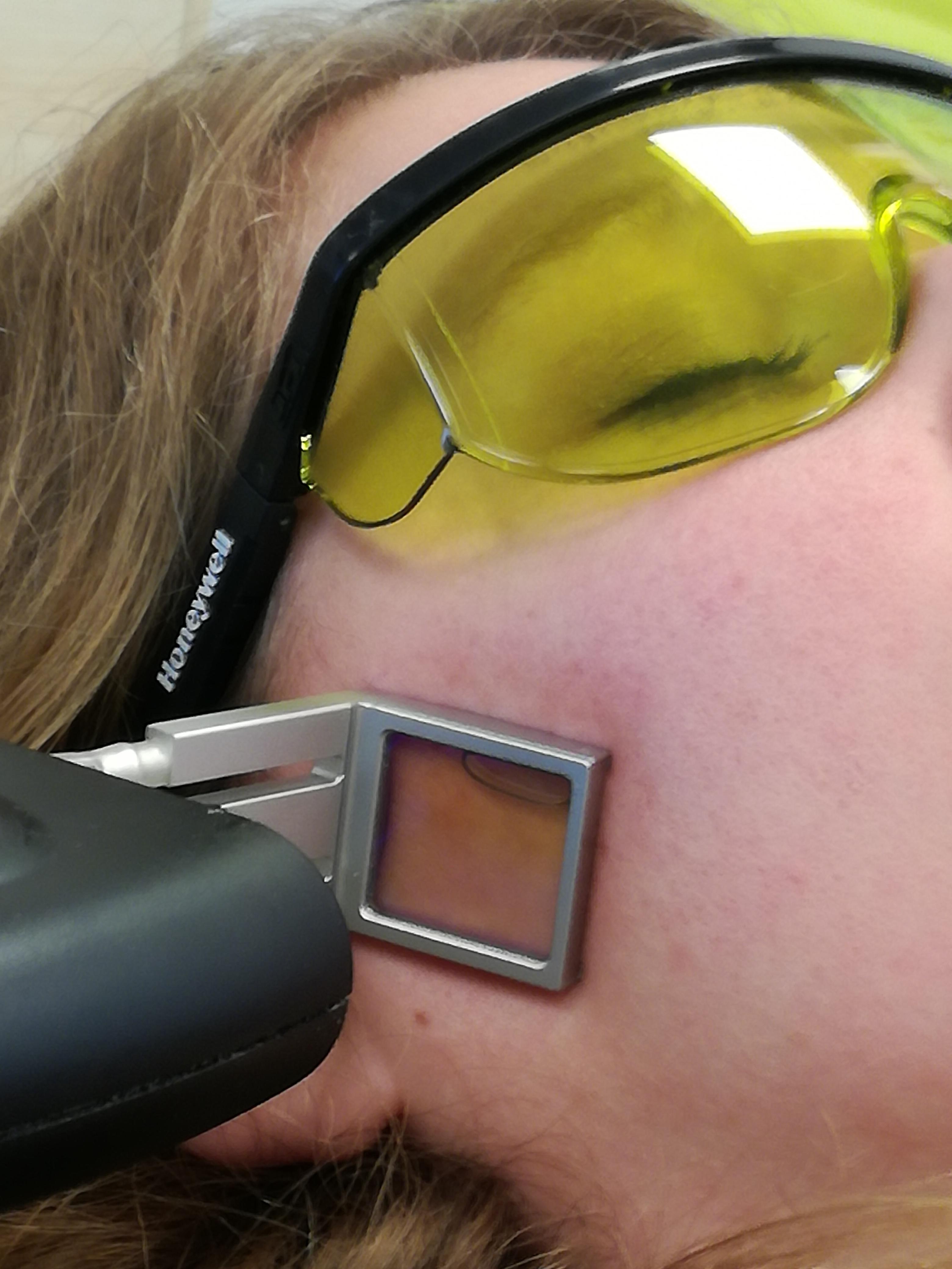 Definitief ontharen gelaat en lichaam diode laser Atossa Huid en Oedeemtheerapie
